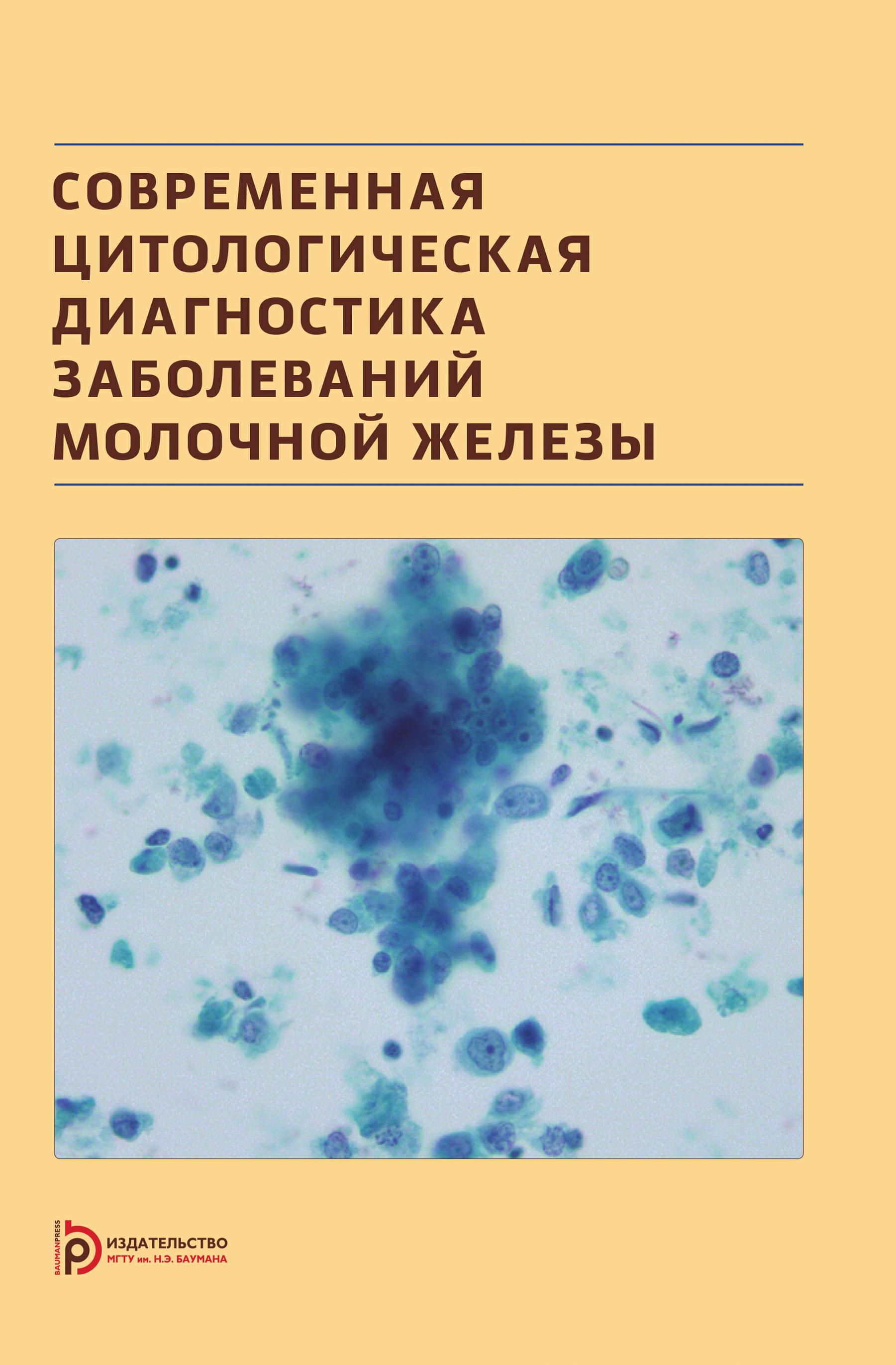 Надежда Волченко Современная цитологическая диагностика заболеваний молочной железы переводчикова н стенина м ред лекарственная терапия рака молочной железы isbn 9785898161231