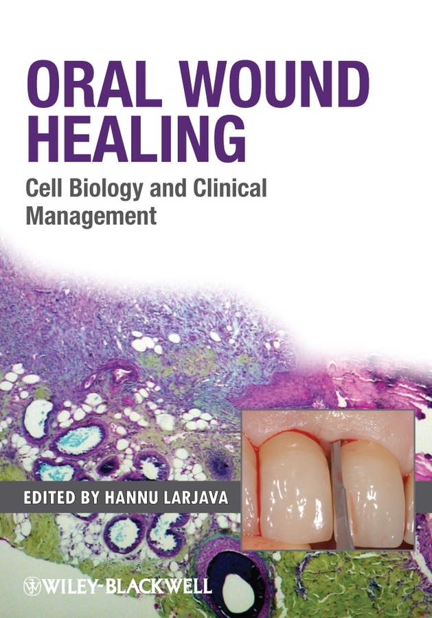 Hannu Larjava Oral Wound Healing. Cell Biology and Clinical Management цена в Москве и Питере