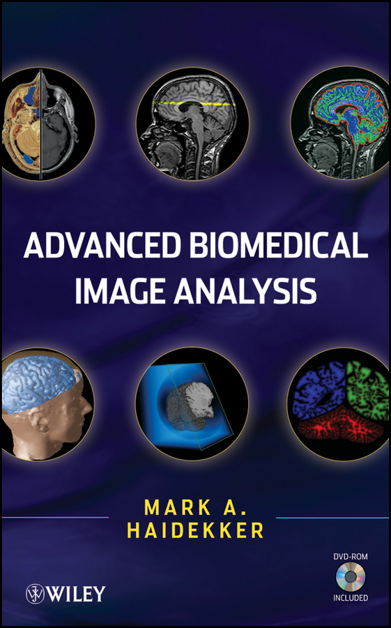 Mark Haidekker Advanced Biomedical Image Analysis все цены