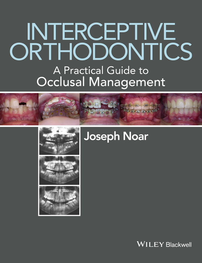 Joseph Noar Interceptive Orthodontics. A Practical Guide to Occlusal Management orthodontic treatment need in lithuania