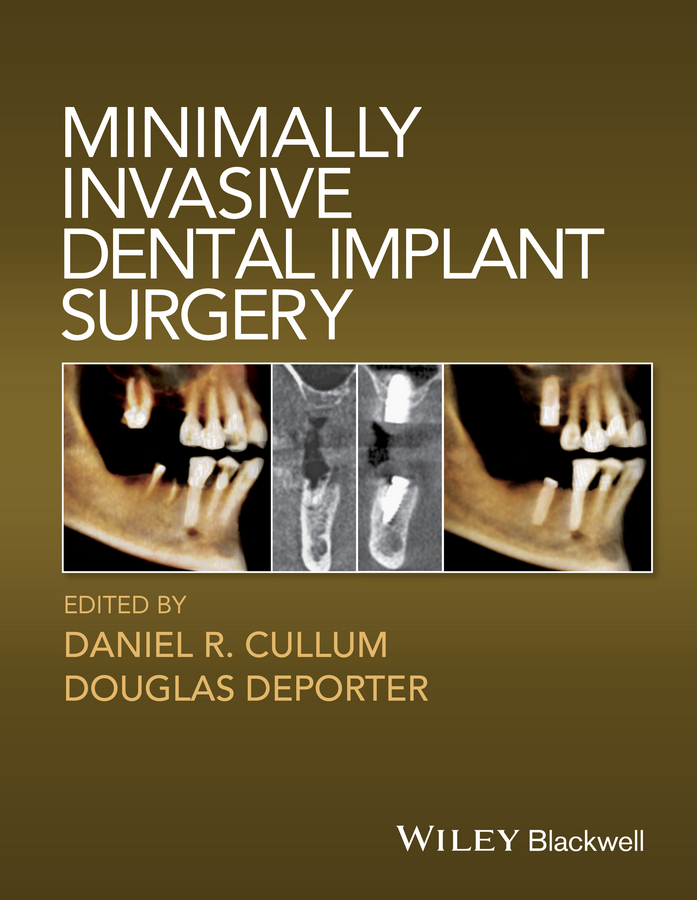 Douglas Deporter Minimally Invasive Dental Implant Surgery