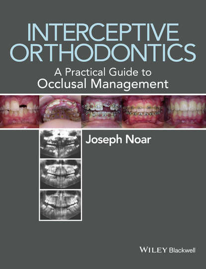Joseph Noar Interceptive Orthodontics. A Practical Guide to Occlusal Management joseph noar interceptive orthodontics a practical guide to occlusal management