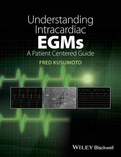 Fred M. Kusumoto Understanding Intracardiac EGMs недорого