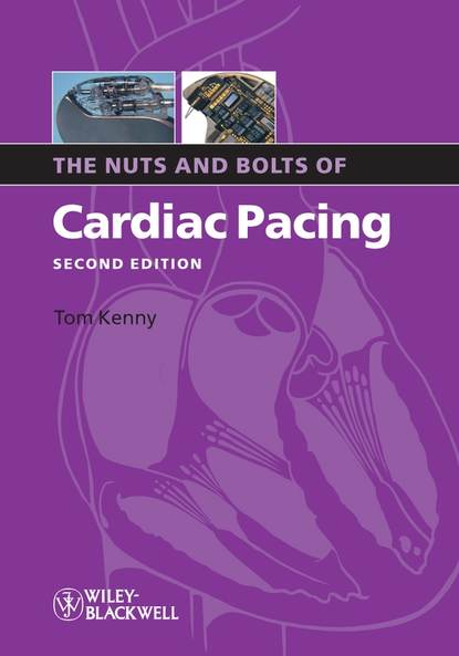Фото - Tom Kenny The Nuts and Bolts of Cardiac Pacing tom kenny the nuts and bolts of cardiac pacing