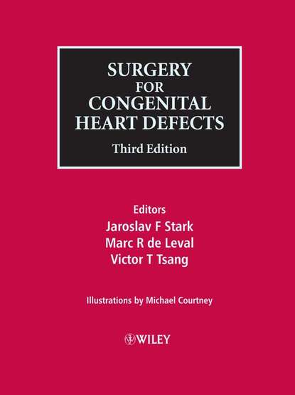 Michael Courtney Surgery for Congenital Heart Defects michael welker quests for freedom second edition