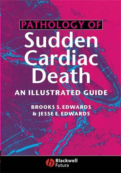 Фото - Brooks Edwards S. Pathology of Sudden Cardiac Death jamie goode a development of the cardiac conduction system