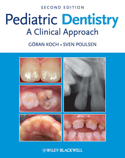 Goran Koch Pediatric Dentistry preparation of pediatric patients for treatment with proton beam therapy