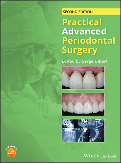 Группа авторов Practical Advanced Periodontal Surgery недорого