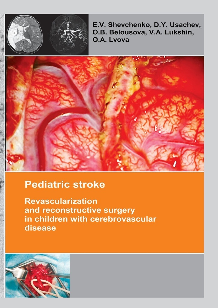 Pediatric stroke. Revascularization and reconstructive surgery in children with cerebrovascular disease